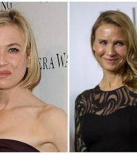 Renée Zellweger antes y después
